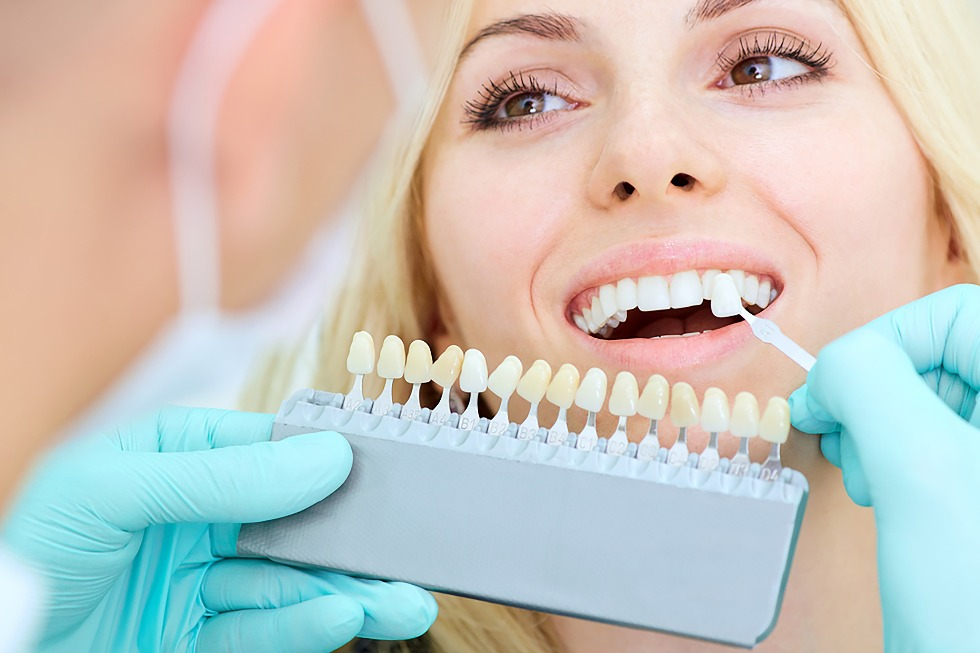 Are Dental Veneers a Worthy Investment?